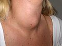 hipotiroidism la copii
